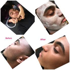 Hair Removal Salon