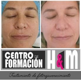H & M Peluquería Y Estética