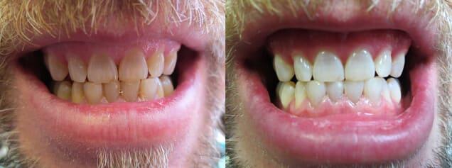 Smile Bright Mobile Teeth Whitening
