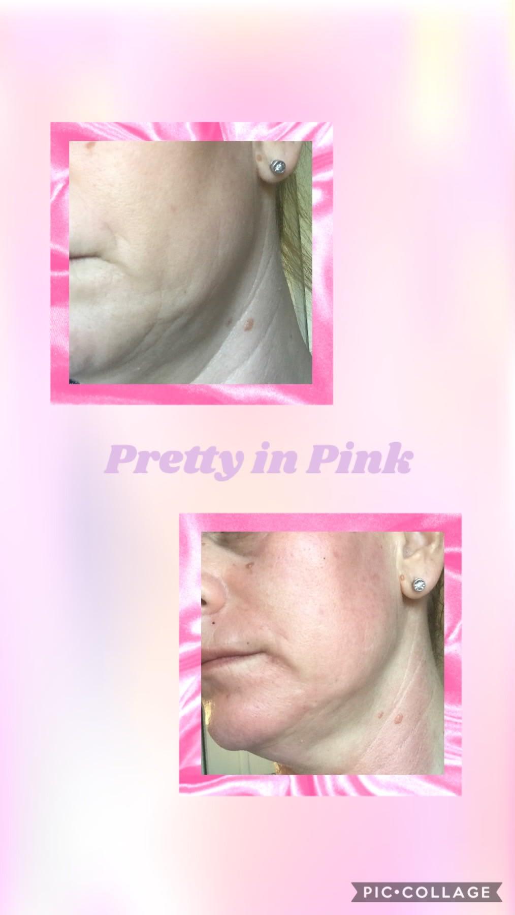 Skin Pro V